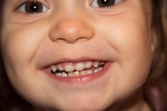 Как сохранить здоровье детских зубов (2)